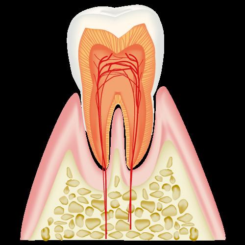 初期むし歯(C0)