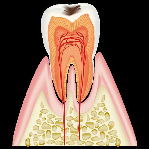 エナメル質のむし歯(C1