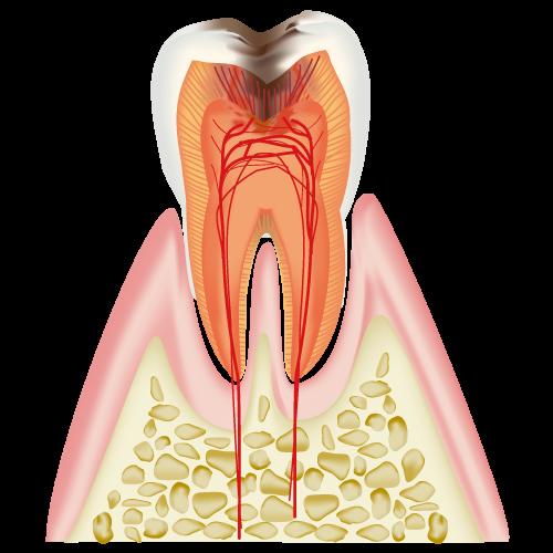 神経まで進んだむし歯(C3)